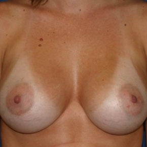After Photo - Breast Augmentation - Case #2943 - Subglandular Breast Augmentation - Frontal View