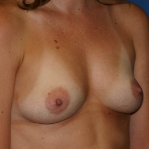 Before Photo - Breast Augmentation - Case #2943 - Subglandular Breast Augmentation - Oblique View