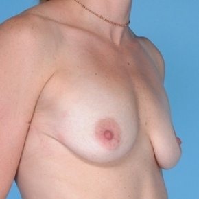 Before Photo - Breast Augmentation - Case #2597 - Silicone  - Lateral View