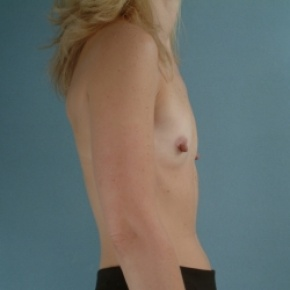 Before Photo - Breast Augmentation - Case #2951 - Breast Augmentation, Submuscular - Oblique View