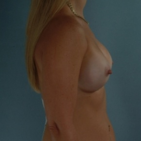 After Photo - Breast Augmentation - Case #2951 - Breast Augmentation, Submuscular - Oblique View
