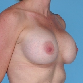 After Photo - Breast Augmentation - Case #2597 - Silicone  - Lateral View