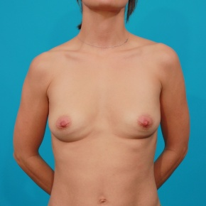 Before Photo - Breast Augmentation - Case #2954 - Silicone Gel Implants - Frontal View