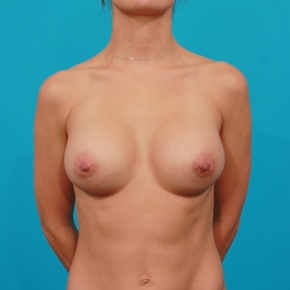 After Photo - Breast Augmentation - Case #2954 - Silicone Gel Implants - Frontal View