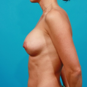 After Photo - Breast Augmentation - Case #2954 - Silicone Gel Implants - Lateral View