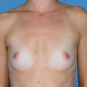 Before Photo - Breast Augmentation - Case #2598 - Silicone  - Frontal View