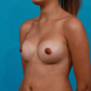 After Photo - Breast Augmentation - Case #2957 - Silicone Gel Implants - Oblique View