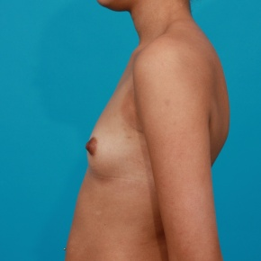 Before Photo - Breast Augmentation - Case #2957 - Silicone Gel Implants - Lateral View