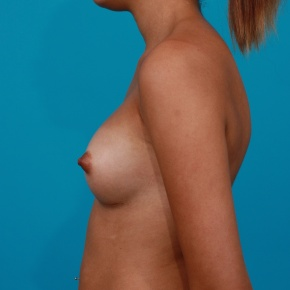 After Photo - Breast Augmentation - Case #2957 - Silicone Gel Implants - Lateral View