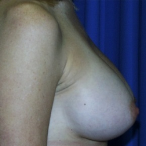 After Photo - Breast Augmentation - Case #2960 - Lateral View