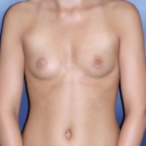Before Photo - Breast Augmentation - Case #2965 - Natural Proportional Breast Augmentation - Frontal View