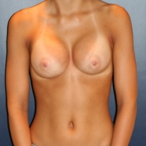 After Photo - Breast Augmentation - Case #2965 - Natural Proportional Breast Augmentation - Frontal View