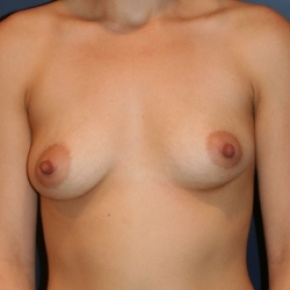 Before Photo - Breast Augmentation - Case #2968 - Natural Proportional Breast Augmentation - Frontal View