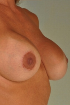 After Photo - Breast Augmentation - Case #2975 - Breast Implant Exchange - Frontal View