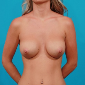 After Photo - Breast Augmentation - Case #2976 - Silicone Gel Implants - Frontal View