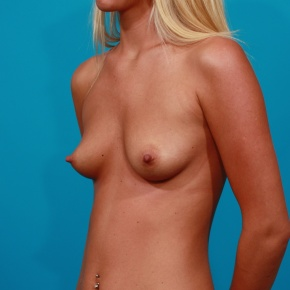 Before Photo - Breast Augmentation - Case #2976 - Silicone Gel Implants - Oblique View
