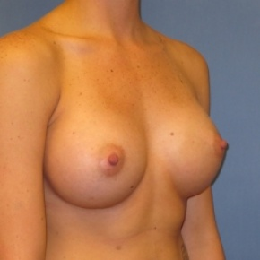 After Photo - Breast Augmentation - Case #2935 - Oblique View
