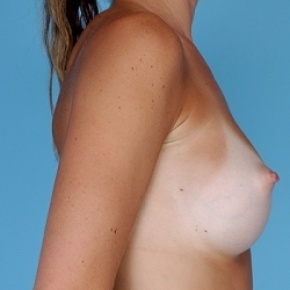 After Photo - Breast Augmentation - Case #2598 - Silicone  - Oblique View