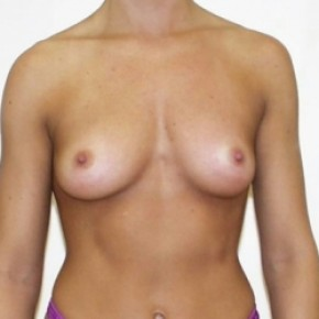 Before Photo - Breast Augmentation - Case #3420 - Frontal View