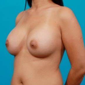 After Photo - Breast Augmentation - Case #2480 - Saline Breast Augmentation - Oblique View