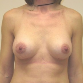 After Photo - Breast Augmentation - Case #3421 - Frontal View