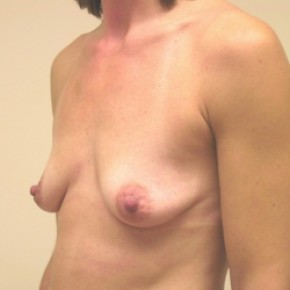 Before Photo - Breast Augmentation - Case #3421 - Oblique View