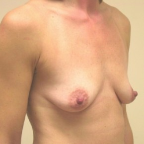 Before Photo - Breast Augmentation - Case #3421 - Posterior Oblique View