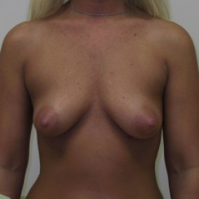 Before Photo - Breast Augmentation - Case #3422 - Frontal View
