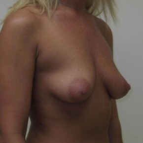 Before Photo - Breast Augmentation - Case #3422 - Oblique View