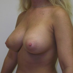 After Photo - Breast Augmentation - Case #3422 - Posterior Oblique View