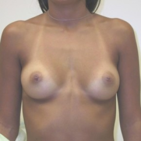 Before Photo - Breast Augmentation - Case #3423 - Frontal View