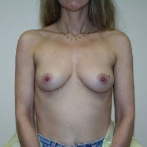 Before Photo - Breast Augmentation - Case #3424 - Frontal View