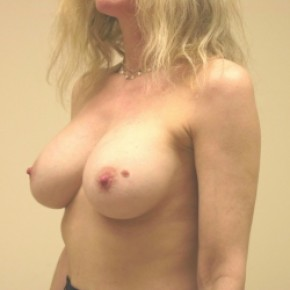After Photo - Breast Augmentation - Case #3424 - Lateral View