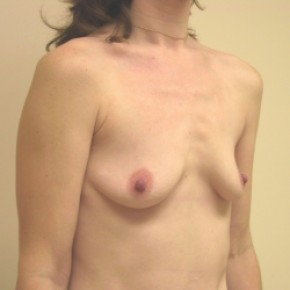 Before Photo - Breast Augmentation - Case #3425 - Lateral View