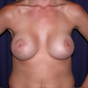 After Photo - Breast Augmentation - Case #2545 - Breast Augmentation & PeriAreolar Cresant Mastopexy - Frontal View
