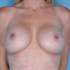 After Photo - Breast Augmentation - Case #2599 - Silicone  - Frontal View