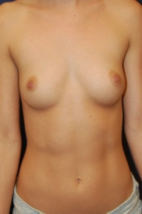 Before Photo - Breast Augmentation - Case #3437 - Frontal View