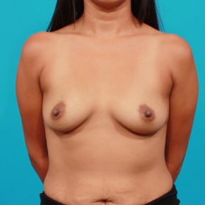 Before Photo - Breast Augmentation - Case #3439 - Silicone Breast Augmentation - Frontal View