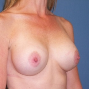 After Photo - Breast Augmentation - Case #2936 - Oblique View