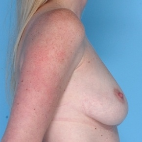 Before Photo - Breast Augmentation - Case #2599 - Silicone  - Oblique View