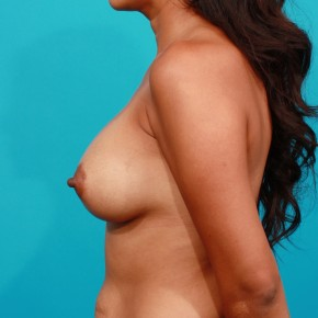 After Photo - Breast Augmentation - Case #3439 - Silicone Breast Augmentation - Lateral View