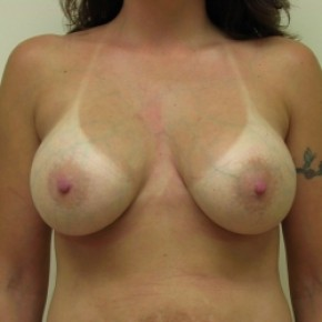 After Photo - Breast Augmentation - Case #3442 - Frontal View