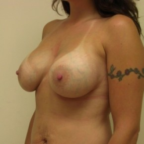 After Photo - Breast Augmentation - Case #3442 - Lateral View