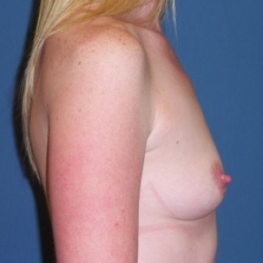 Before Photo - Breast Augmentation - Case #2936 - Lateral View