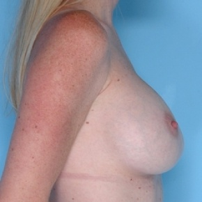 After Photo - Breast Augmentation - Case #2599 - Silicone  - Oblique View