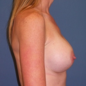 After Photo - Breast Augmentation - Case #2936 - Lateral View