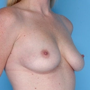 Before Photo - Breast Augmentation - Case #2599 - Silicone  - Lateral View