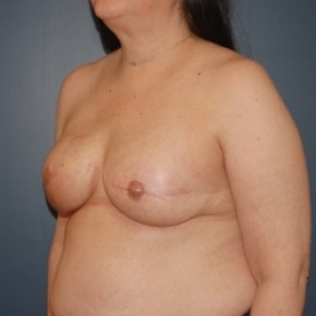 After Photo - Breast Augmentation - Case #3472 - Breast reconstruction with implants after mastectomy - Lateral View