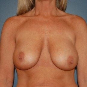 After Photo - Breast Augmentation - Case #3473 - Bilateral breast augmentation with saline filled implants  - Frontal View