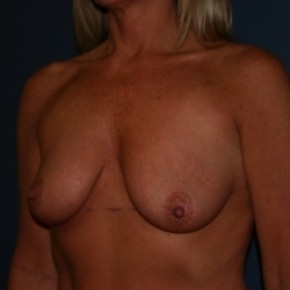 Before Photo - Breast Augmentation - Case #3473 - Bilateral breast augmentation with saline filled implants  - Oblique View